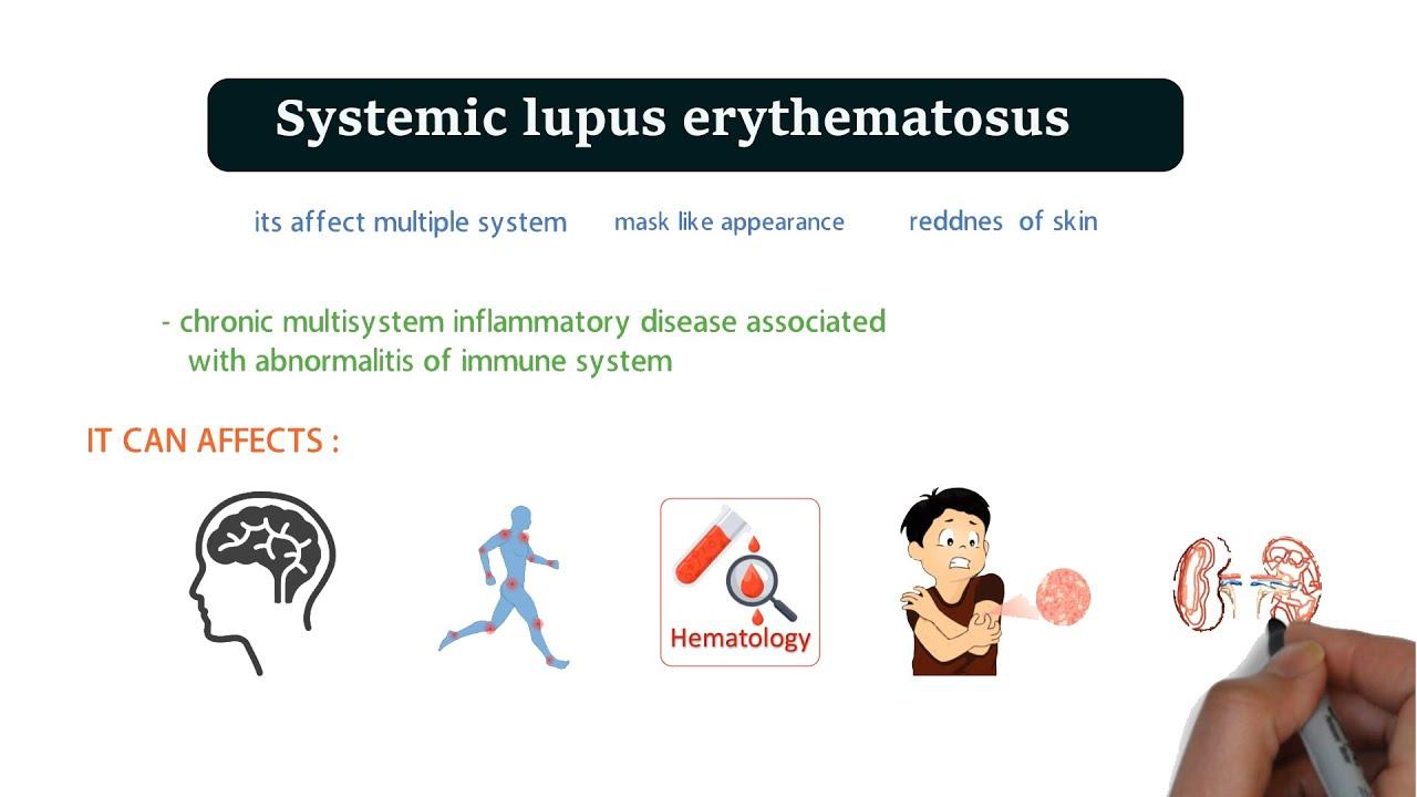 Lupus fogyás nincs étvágya - 10 jó fogyási tipp