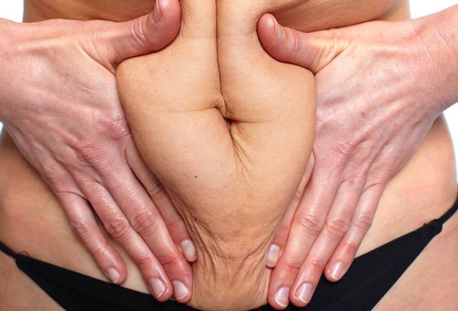 Testburkoló súlycsökkentéshez közelében - Infravörös szauna: Hogyan működik?