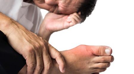 A köszvényes rohamok megelőzése és kezelése
