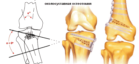 az osteoarthritis súlycsökkenést okoz