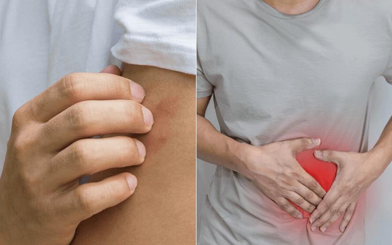 az autoimmun betegség okoz-e fogyást