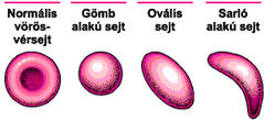 a sarlósejtes vérszegénység okoz-e fogyást