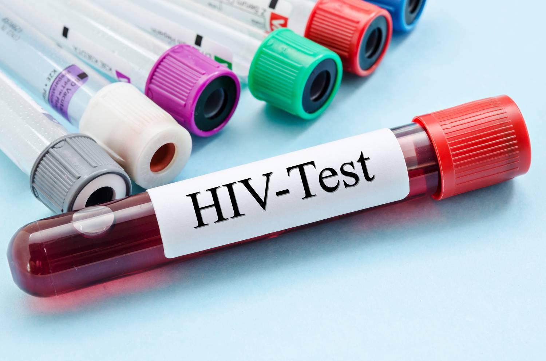 Tudnivalók a HIV-fertőzésről