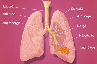 a tüdőgyulladás súlyos fogyást okozhat)