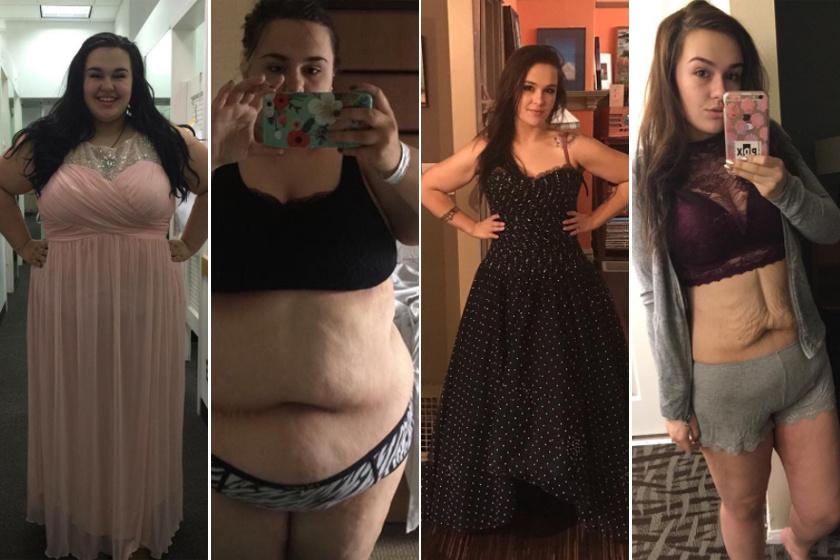 50 kg fogyás előtt és után)
