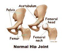 fogyni osteoarthritis