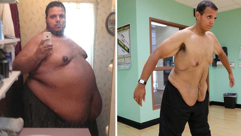 fogyni kell kórosan elhízott fogyás ohss után