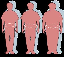 a központi elhízás lefogy)