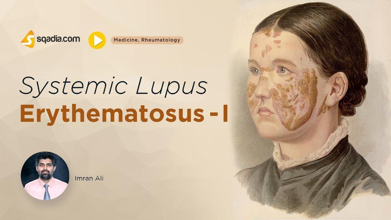 fogyni lupus)