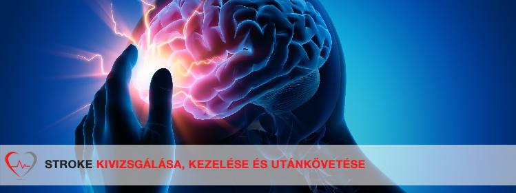 súlycsökkenés agyi stroke után