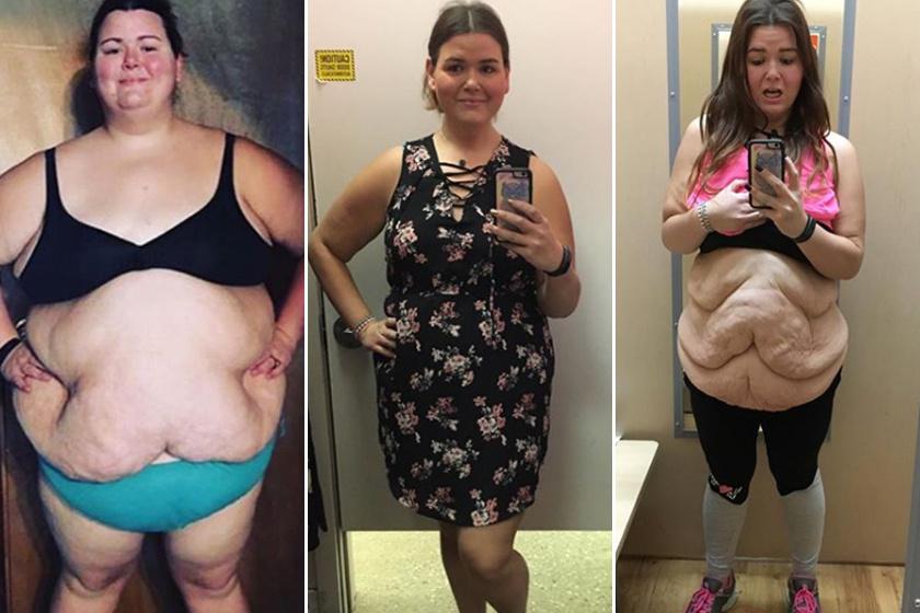 egy hónapos fogyás előtte és utána)