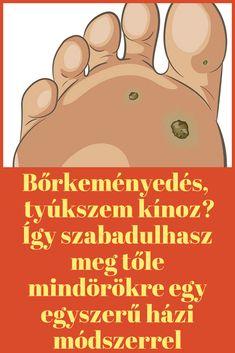 elveszíti a lábát zsír pinterest)