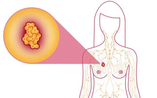 jóindulatú daganatok fogyást okozhatnak)